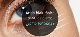Ácido hialurónico para las ojeras, ¿cómo funciona?