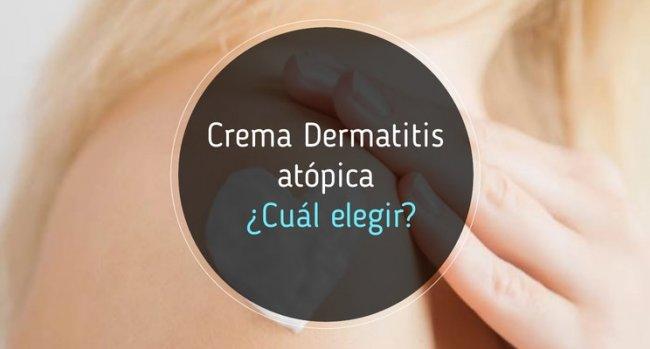Crema para dermatitis atópica ¿Cuál es mejor?