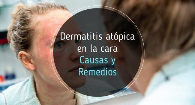 Dermatitis atópica en la cara: causas y remedios