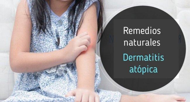 Dermatitis atópica: remedios naturales