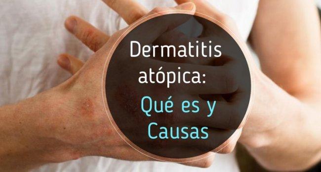 Piel con dermatitis atópica: qué es y sus causas
