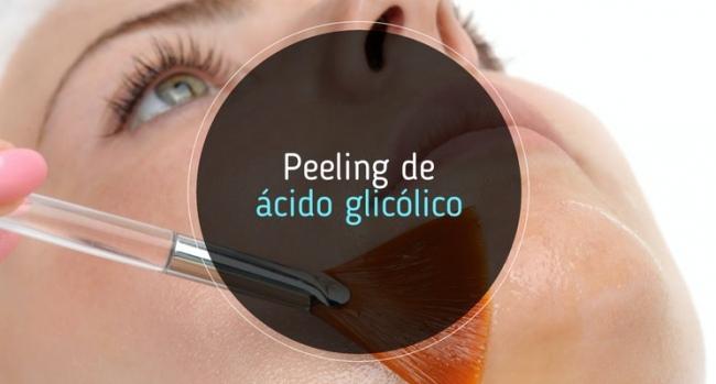 Todo lo que necesitas saber sobre los peelings con ácido glicólico